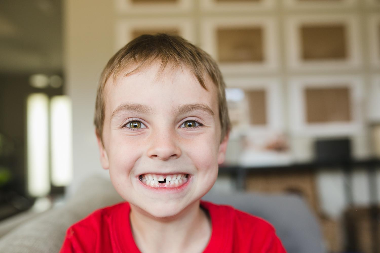 100days-3_tooth-1.jpg
