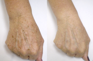 Before and after our pigmented lesions treatments.
