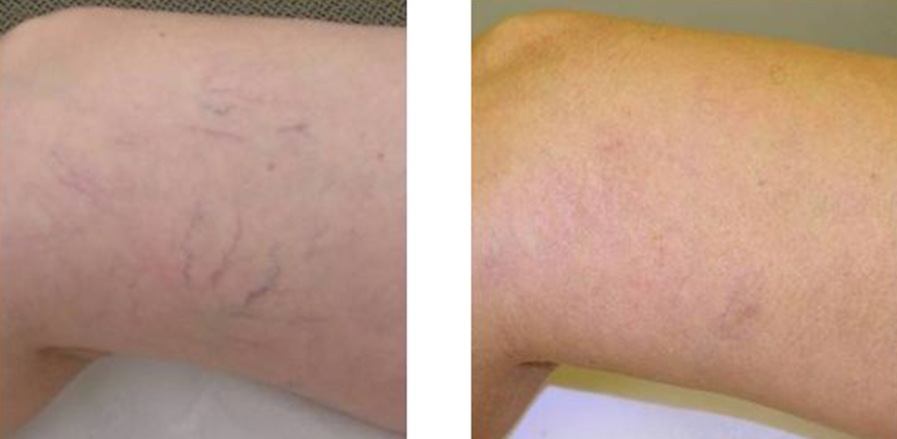 Before and after our laser vein & telangiectasias treatment.