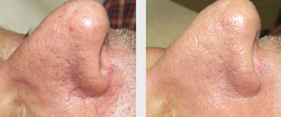 Before & after our laser facial treatment.