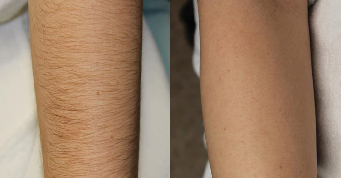 Before and after our laser hair removal treatment.