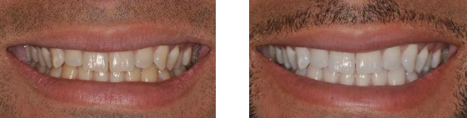 Before and after our  laser teeth whitening.