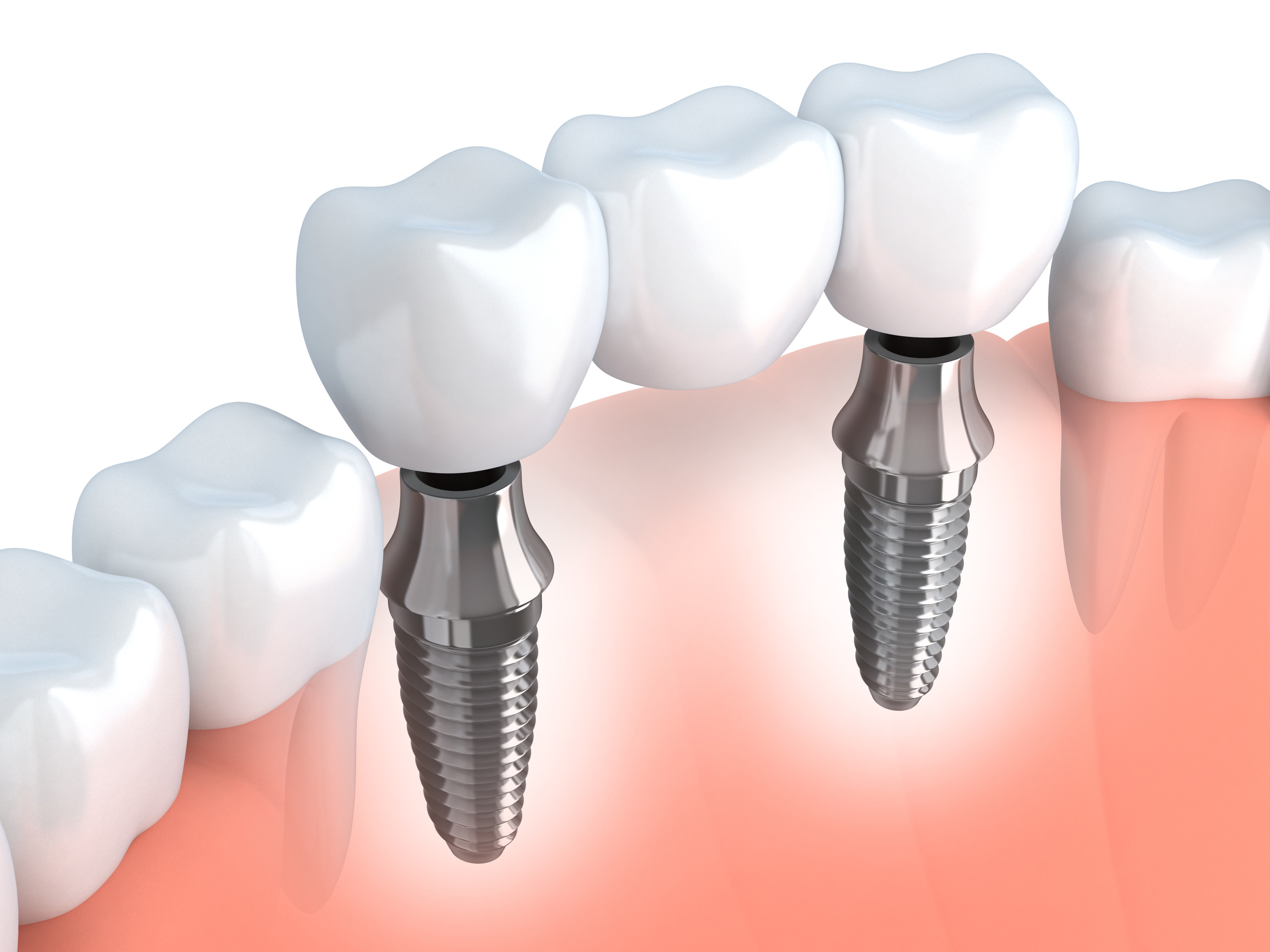 Implant Bridge to Replace Multiple Teeth