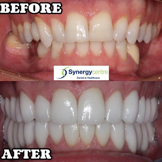 Gosh we love to show off his work #reasontosmile #beforeandafter #synergycentre #cosmeticdentistry #dentalveneers #dentalimplants #londonont #londonontario #smile #selfcare #porcelain #dentist @synergycentre @whenyouareready