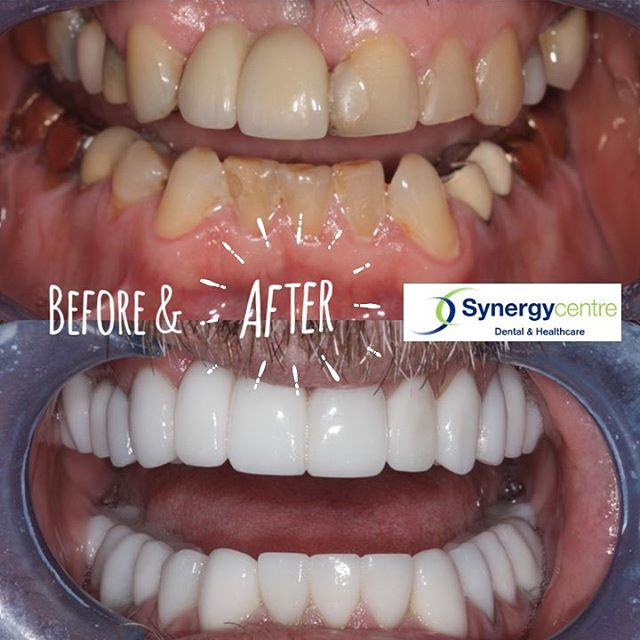 When it matters. Put your best smile forward. Bottom line - love your GRIN @synergycentre #cosmeticdentistry #londonont #londonontario #behappy #selfcare #selfworth #dentist #dentalcare #yourworthit