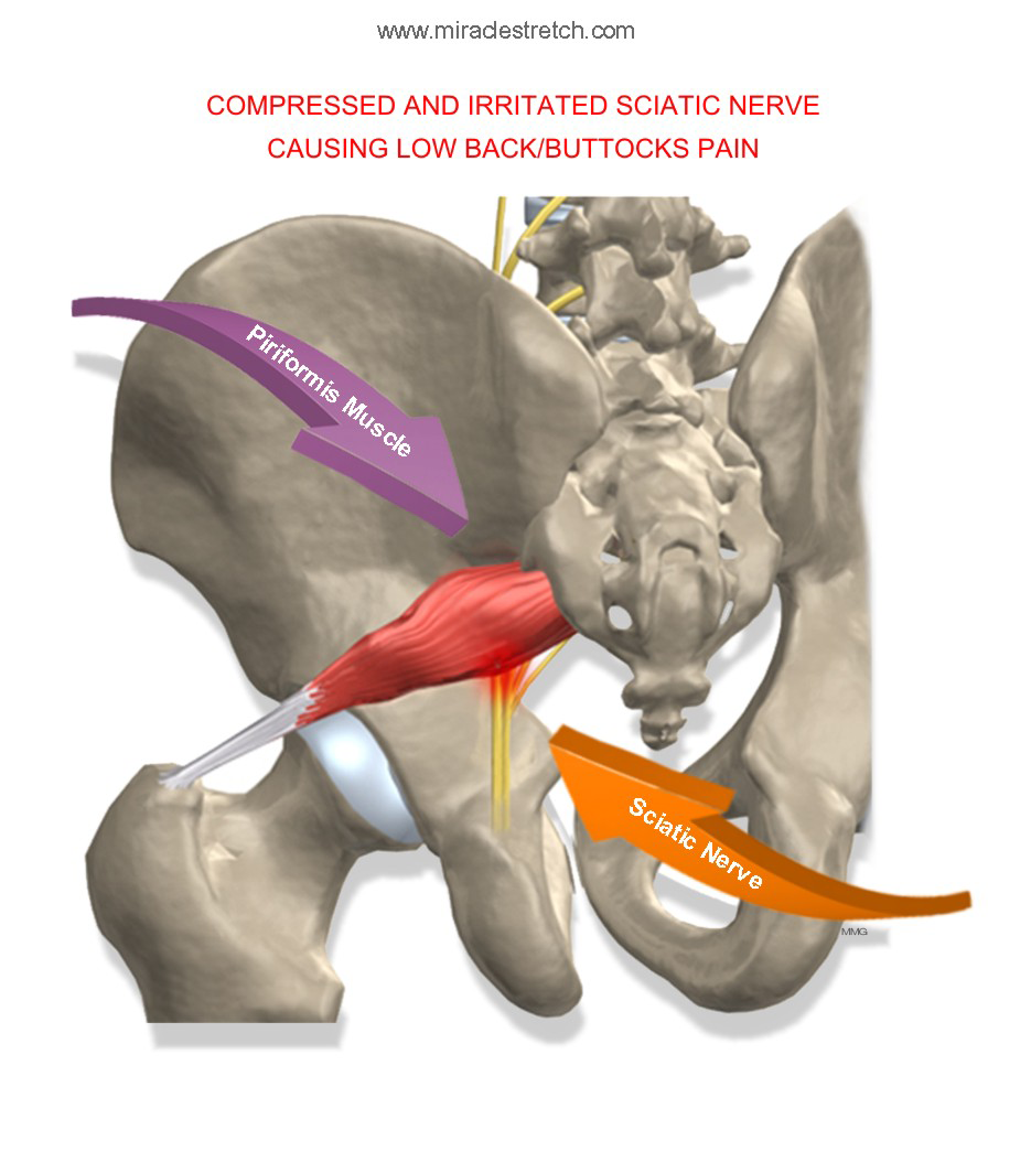 Anatomy of Piriformis Muscle and Sciatic Nerve
