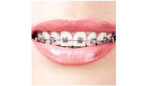 braces metal braces.png