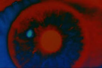 26. Chapter 31 - 2001 Bowman Eye