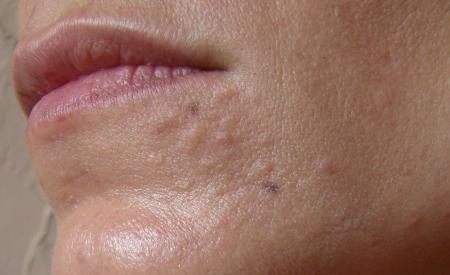 SebaceousHyperplasia