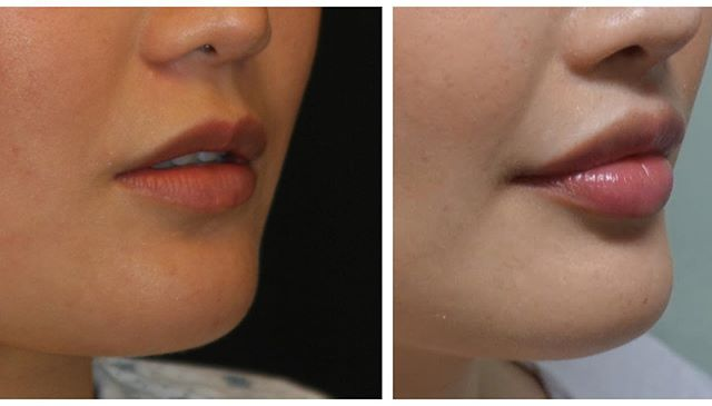 Dermal fillers can help subtly or dramatically augment the size of your lips depending on your personal goals.  Whether a person is born with genetically thinner lips or they have lost volume due to aging, lip filler can be an inexpensive and great way to help turn back the hands of time! Call us today for your consultation!! #facialartinstitute #botox #okcesthetician #dermaplaning #theperfectpeel #dermalfillers #beauty #microneedling #vampirefacial #bellafill #voluma #juvaderm #chemicalpeel #fillers #theperfectdermapeel #face #okc #edmond #bestself