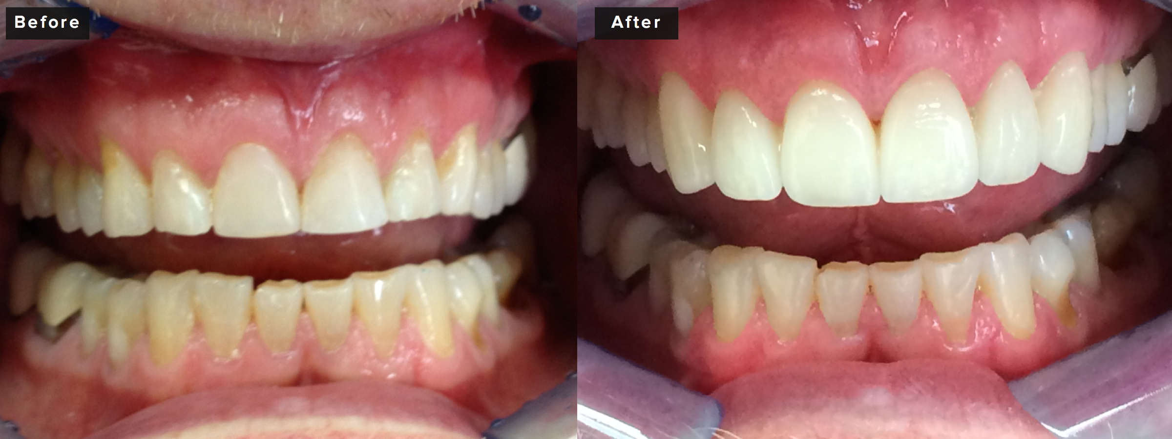 This case involved six front upper teeth, also done in all porcelain. The patient concerns were moderate to severe wear due to grinding and we were able to create an improved smile while also providing properly protected occlusion with specific detailed rebuilding of his bite. We achieved better aesthetics by rebuilding the teeth but also by recontouring his tissues slightly to increase the vertical dimension and provide improved symmetry. About two hours of prep time and an hour and a half for insertion.