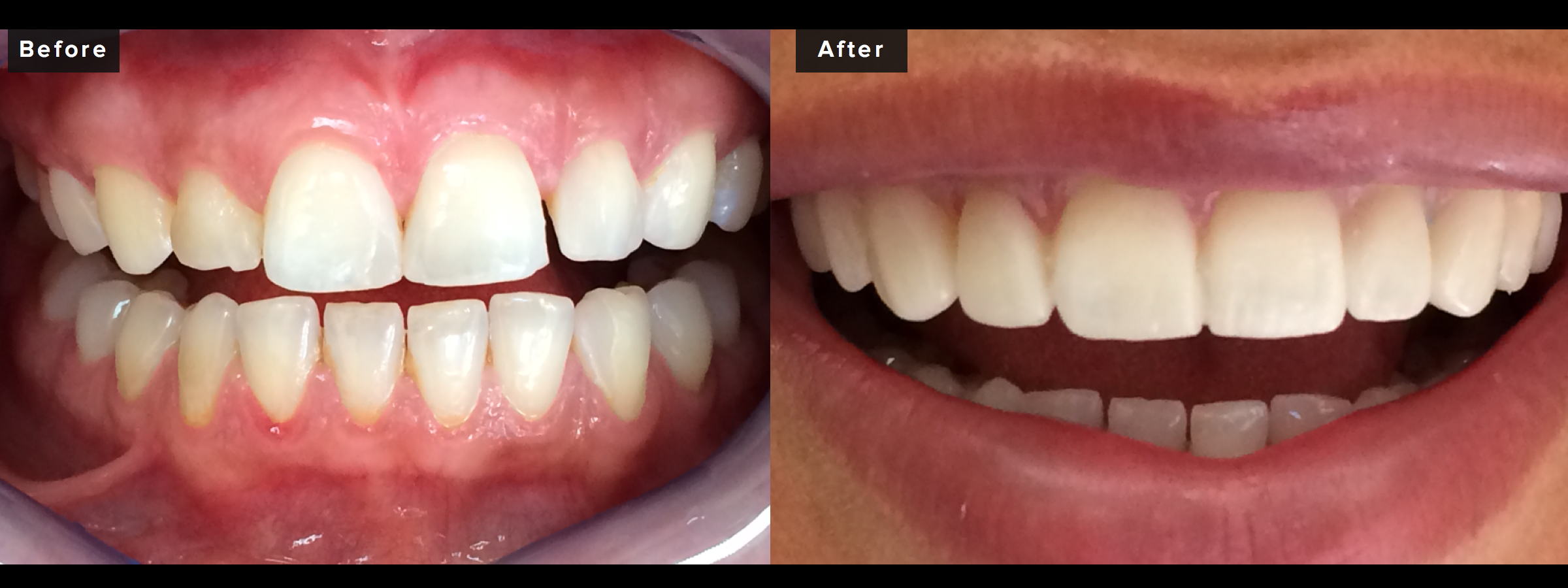 This case is an example of some of the initial diagnostic work that we can do that allows us to properly record all aspects of a patient's smile and bite. We have done all preparatory records for this patient and have worked everything up in wax in order to assess how the final result might look. We simply placed a template of the proposed final result over top of her existing teeth and utilized a flowable temporary material to provide a direct look at what things could look like. This took ten minutes of chair time and the patient was able to wear it home to spend some time assessing things and to gain some valuable feedback from her family and friends. This mock-up peels off rather easily and no damage is done to the underlying teeth. A great way to test run both form and shade!