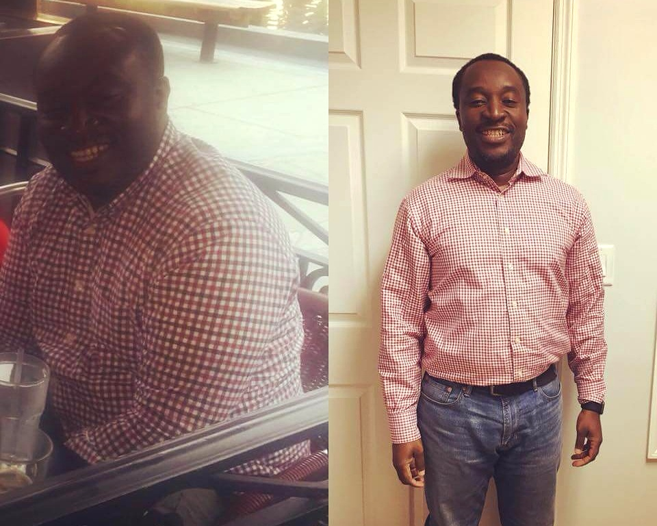 Lost 58 lbs & No Flapping Skin