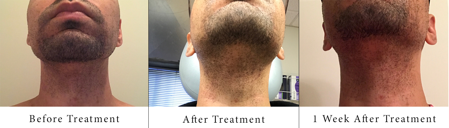 sam-c-perry-the-truth-about-laser-hair-removal-treatment-results-1.jpg