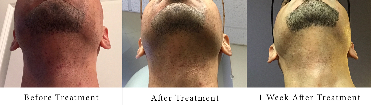 sam-c-perry-the-truth-about-laser-hair-removal-treatment-results-2.jpg.jpg