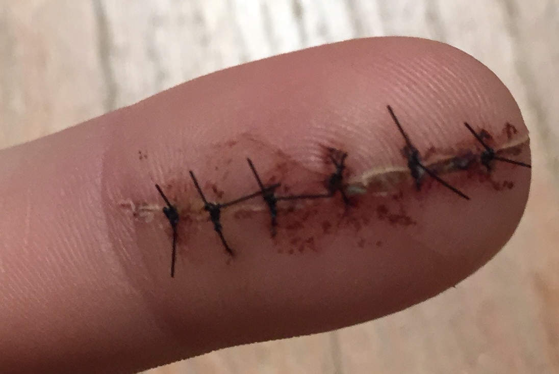 Stitches galore