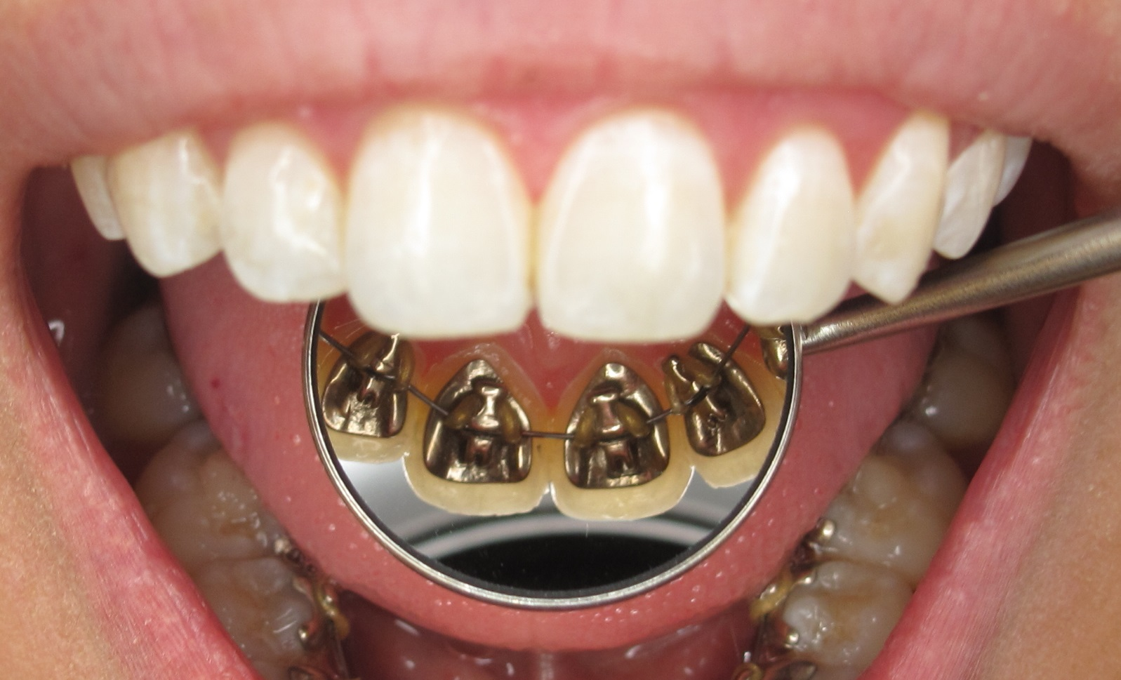 Lingual Braces Look.jpg