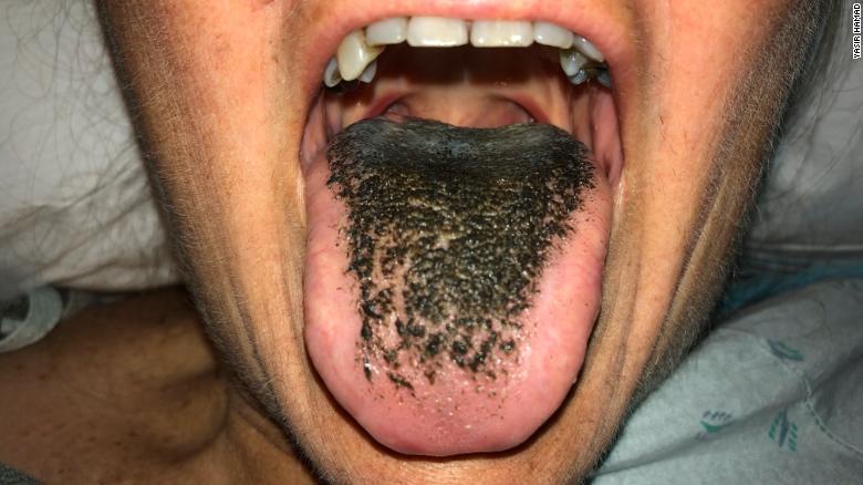 black-hairy-tongue.jpg