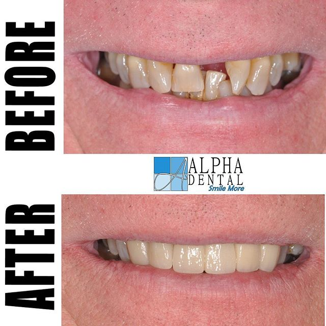 Great outcome for this patient. Let us transform your smile and help you #smilemore #alphadental #clarksvilletn