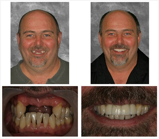before after implant.jpg