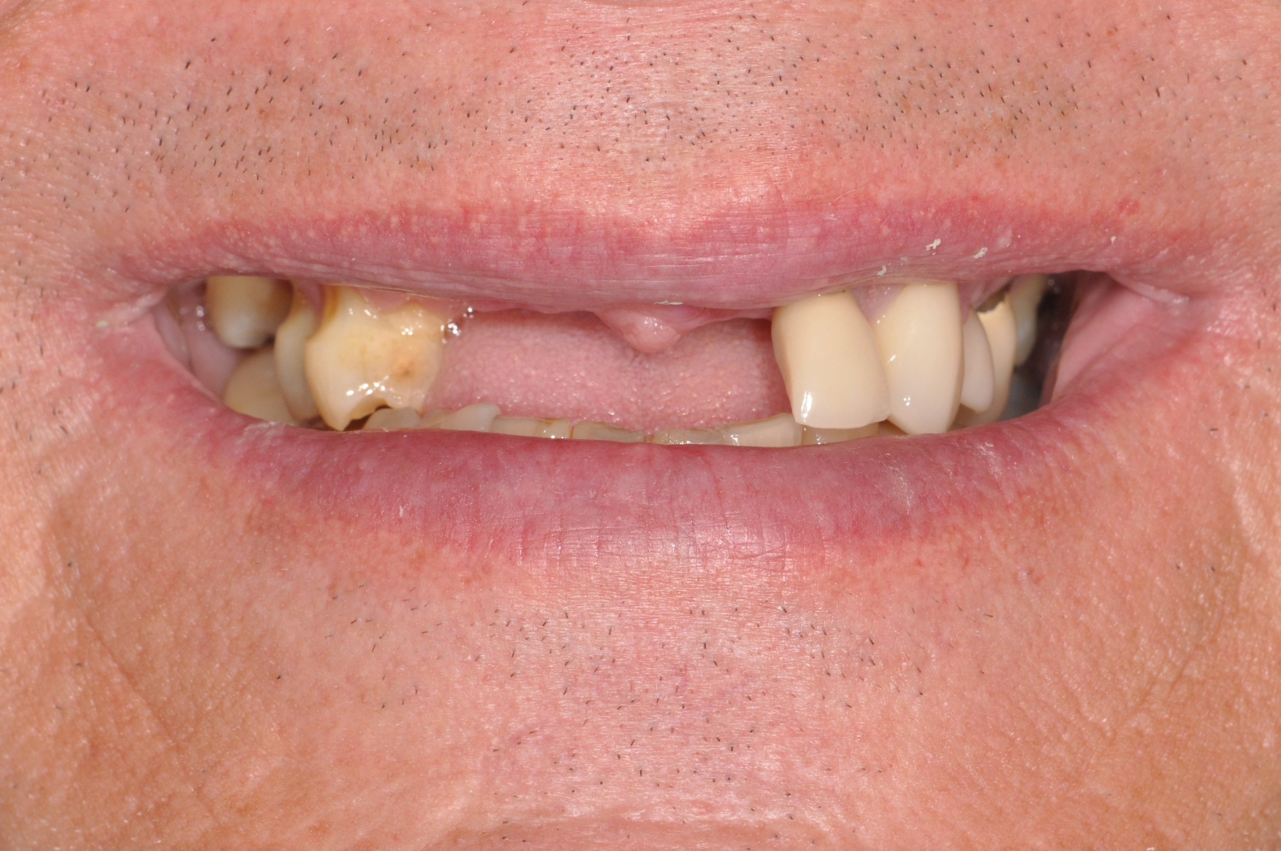 Patient's appearance with removable partial out, before dental implant placement.