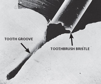 dental sealant 3.jpg