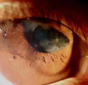 Figure 1. John's right eye