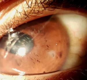 Figure 2. John's left eye