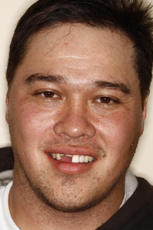 T.Barber implant3.jpg