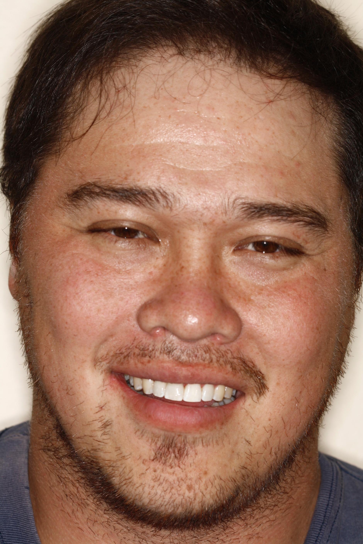 T.Barber implant1.jpg