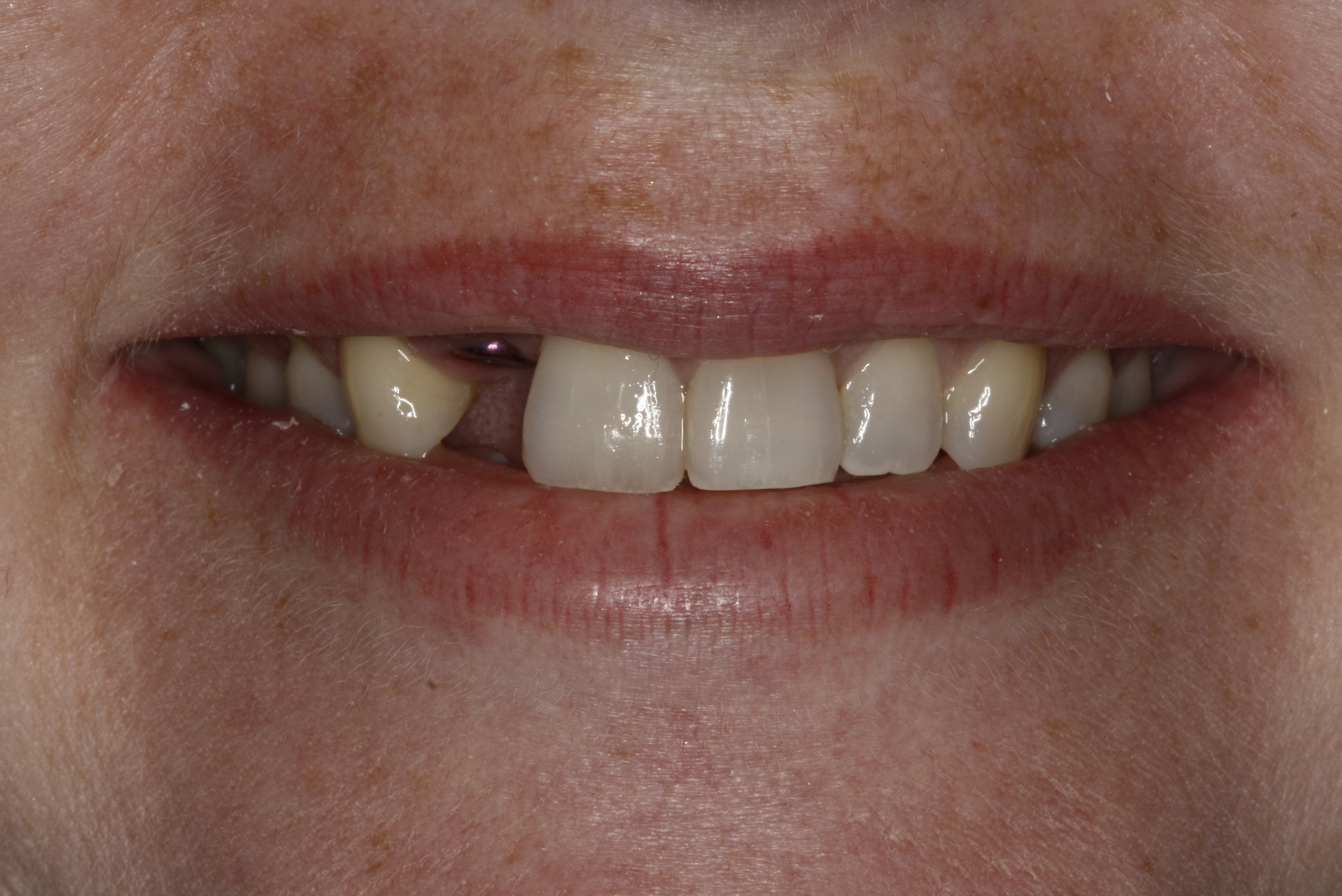 B.implant missing tooth (1).jpg