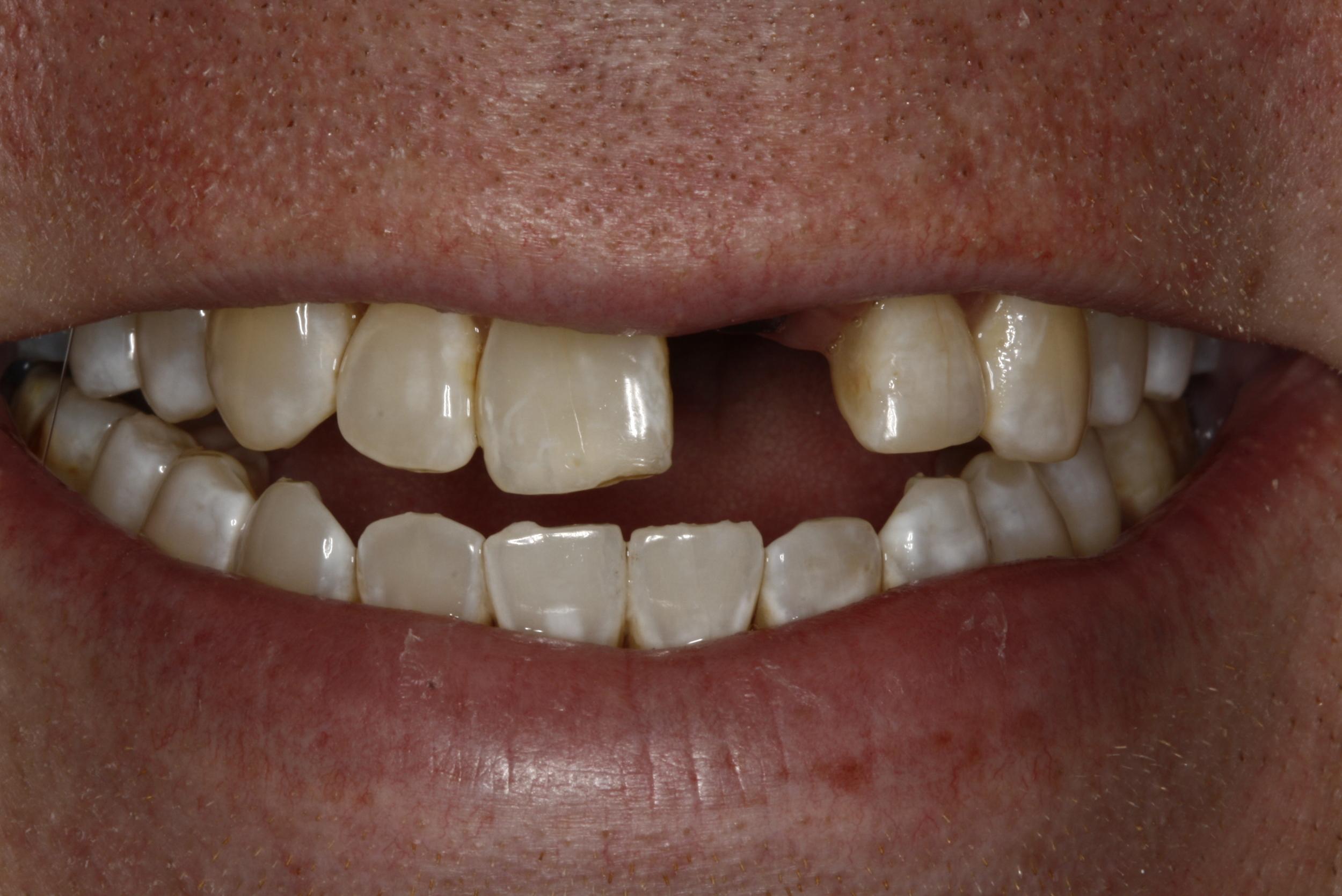 Steve Implant (1).jpg