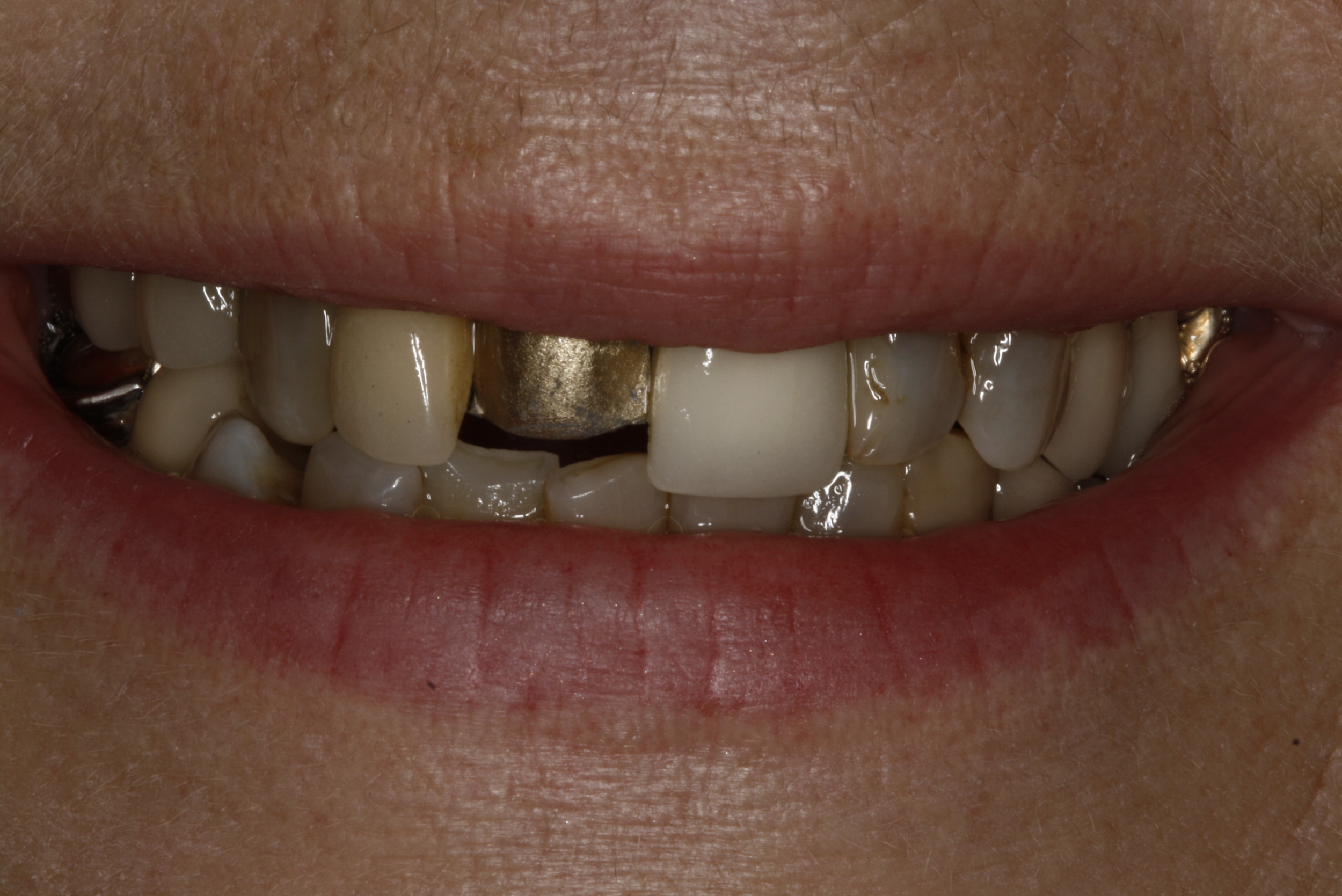 E. Porcelain Crowns.jpg