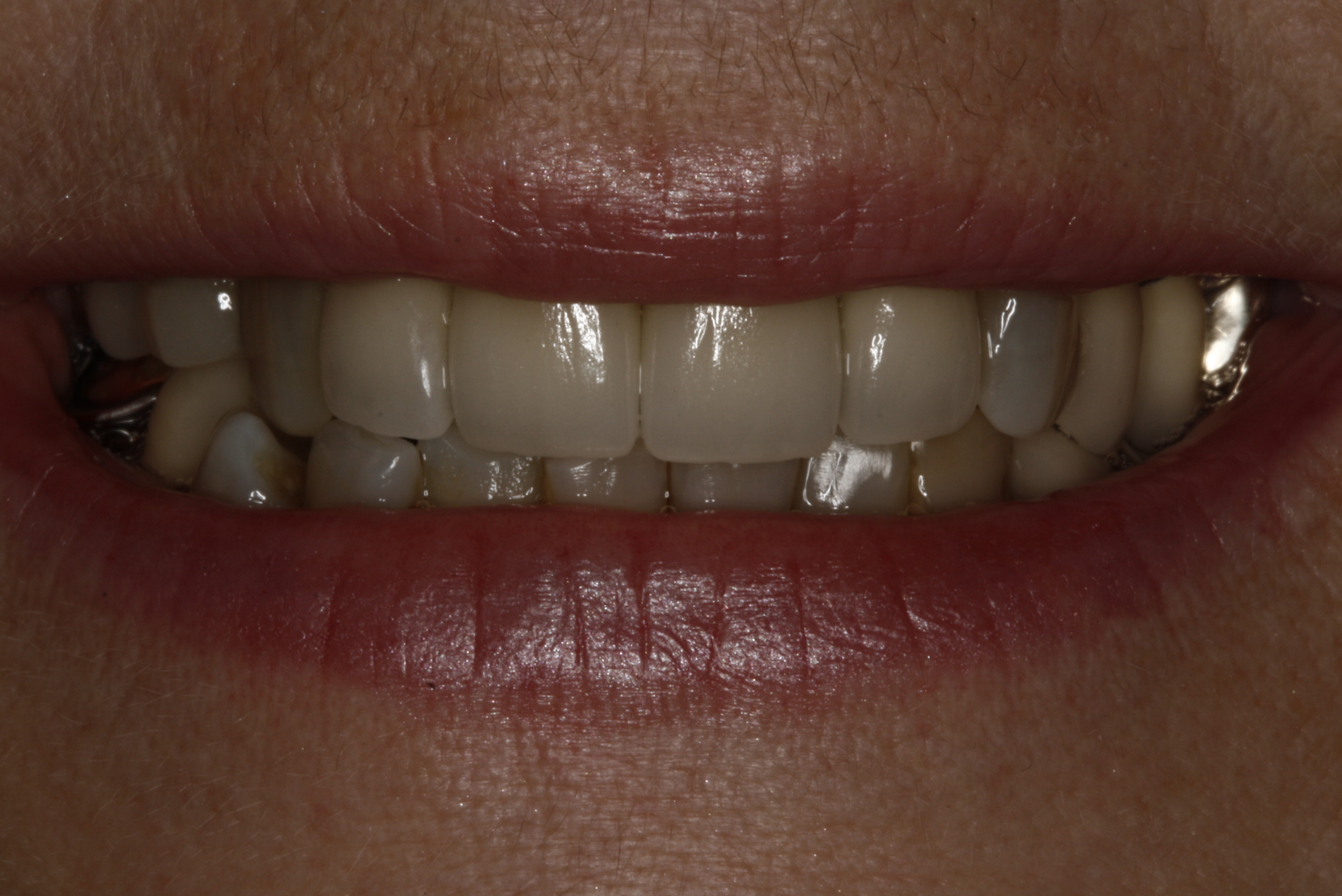 E. Porcelain Crowns (1).jpg