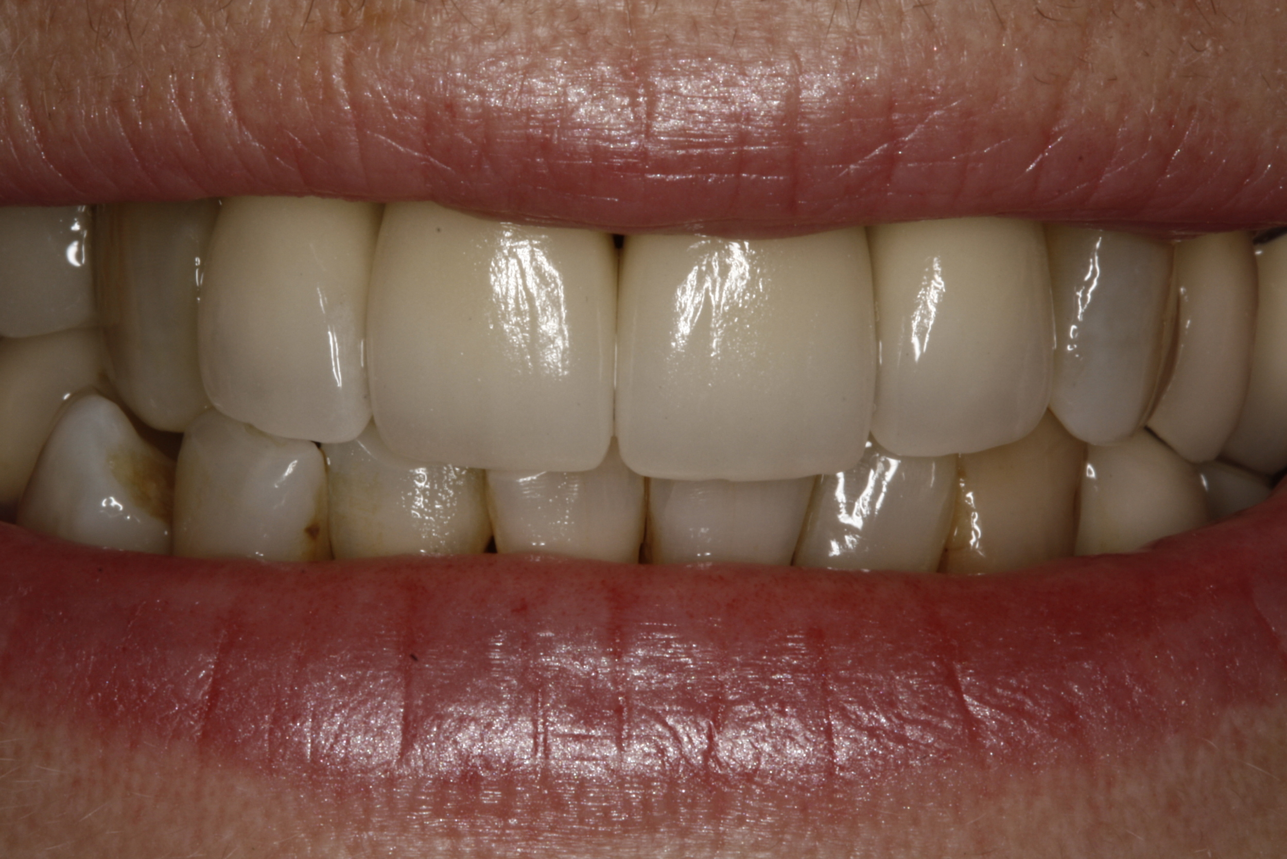 E. Porcelain Crowns (2).jpg
