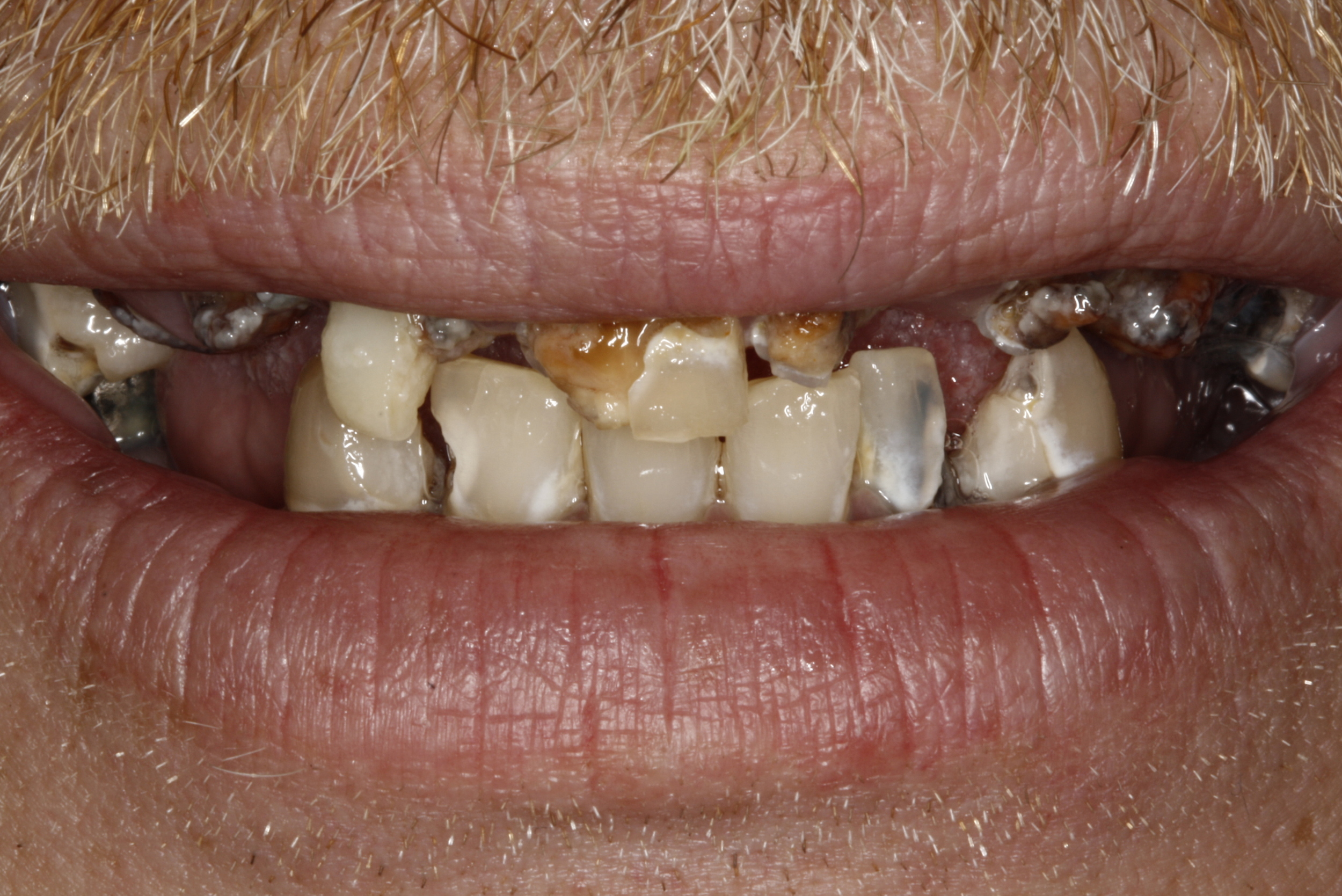Denture & Composite Fillings.jpg
