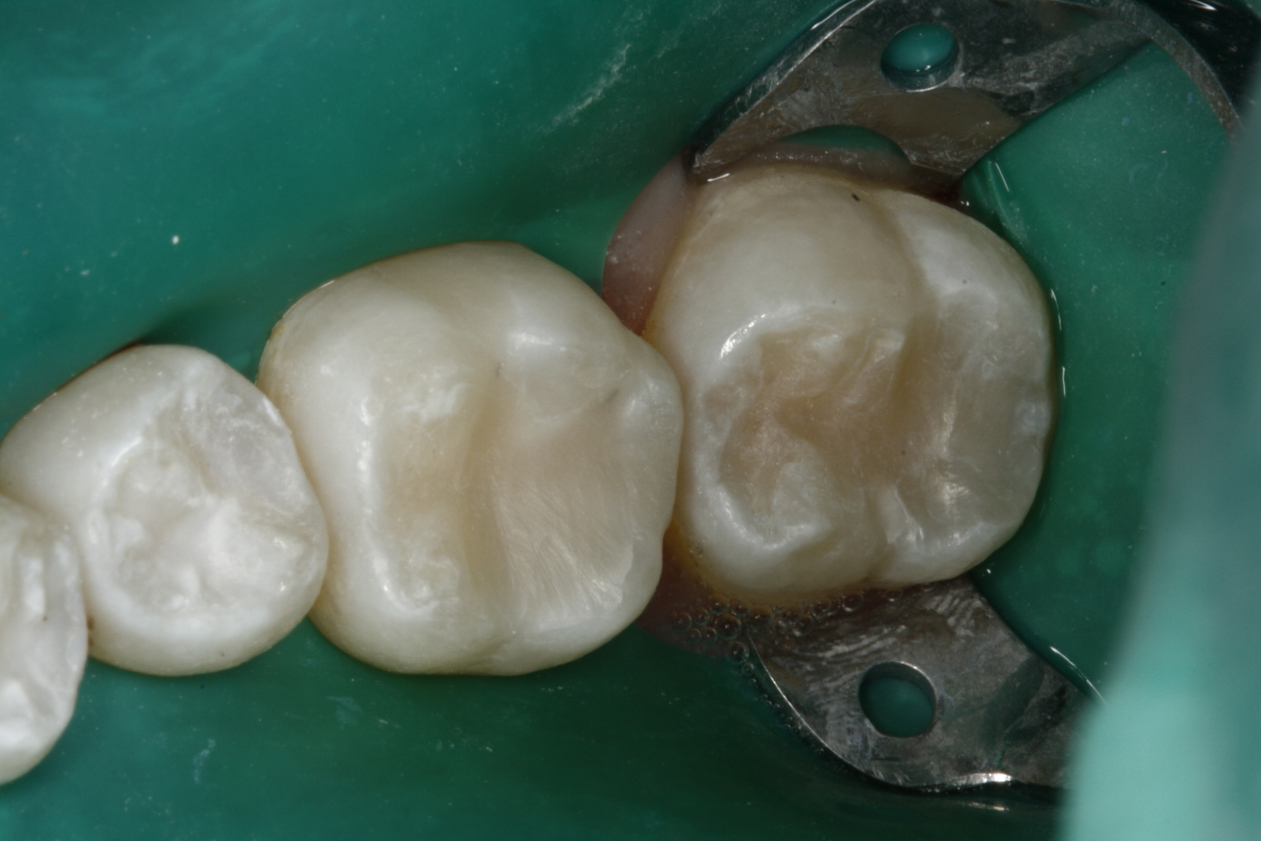 Composite Fillings (1).jpg