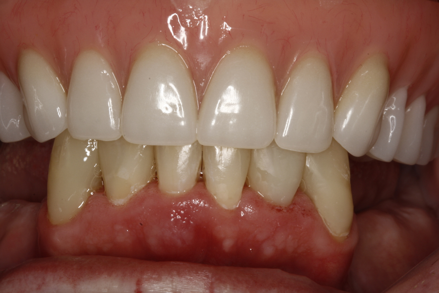 Denture+&+Composite+Fillings+(3).jpg