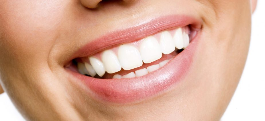 Consumer Guide to Dentistry - Whitening.jpg