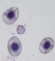 Exflagellating male gametocyte