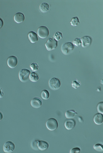 Red blood cells infected with Plasmodium berghei  in culture (credit: Sinclair Stammers)