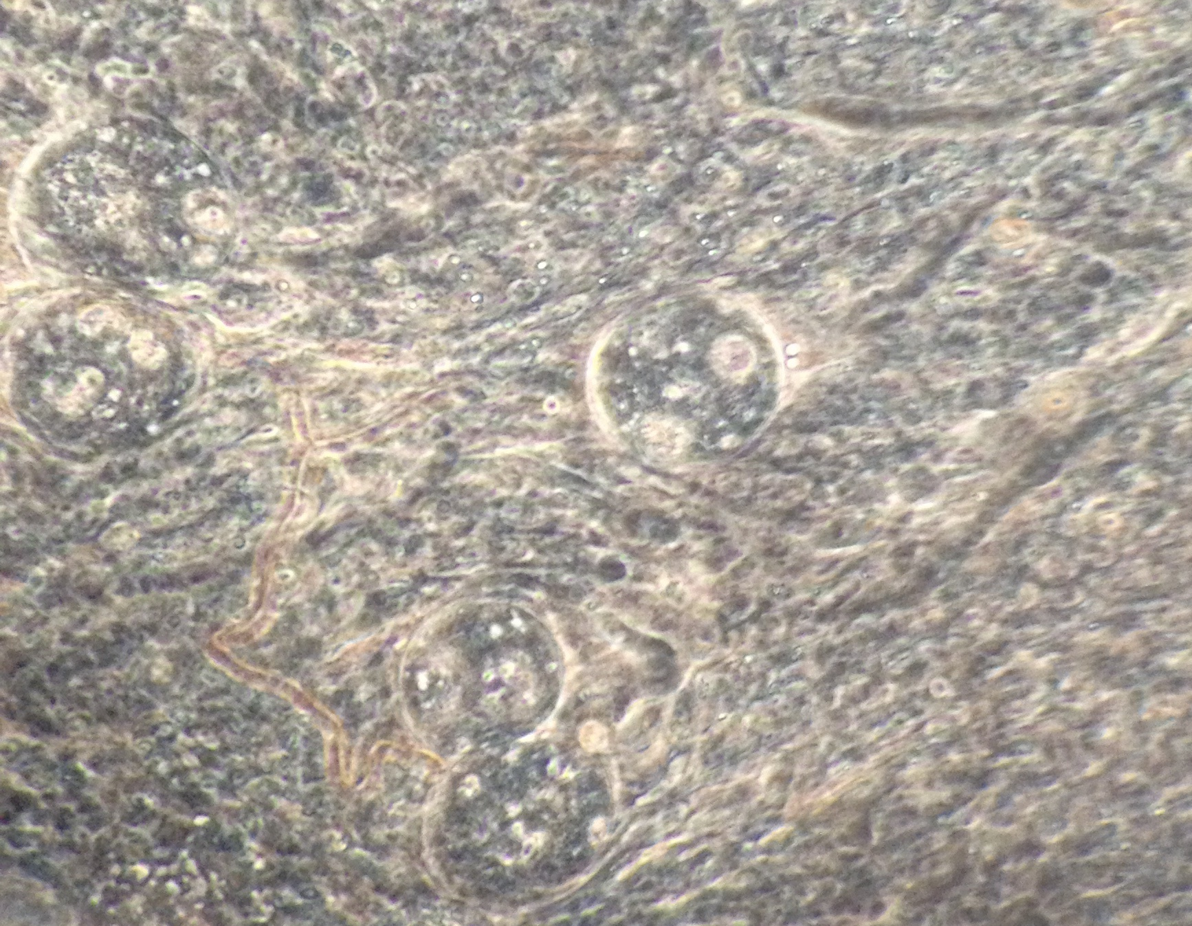 P. chabaudi  oocysts embedded in the midgut lining of  Anopheles stephensi. (Credit: Charlotte Repton)