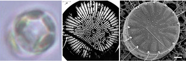 Figure 4.  Comparison of optical and electron microscopy.(From left to right) Optical microscopy of a diatom of the species  Cyclotella  by C. Büchel's group. Electron microscopy of a  Cyclotella  species diatom taken with the 1938 Toronto microscope by H. L. Watson. Electron microscopy of a Cyclotella species diatom taken with a modern electron microscope by C. Büchel's group. Modified from  Buchel  and  UofT .