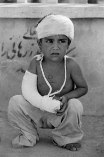 Wounded_Child-Iran-Iraq_War.jpg