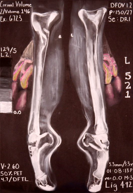 X-Ray Releve