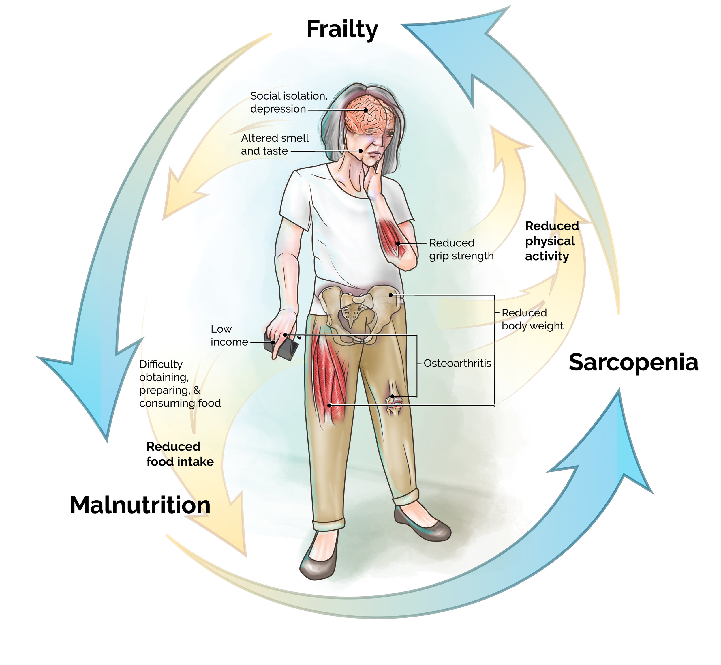 Severin, R., Berner, P. M., Miller, K. L., & Mey, J. (2019). The Crossroads of Aging: An Intersection of Malnutrition, Frailty, and Sarcopenia.  Topics in Geriatric Rehabilitation ,  35 (1), 79-87.