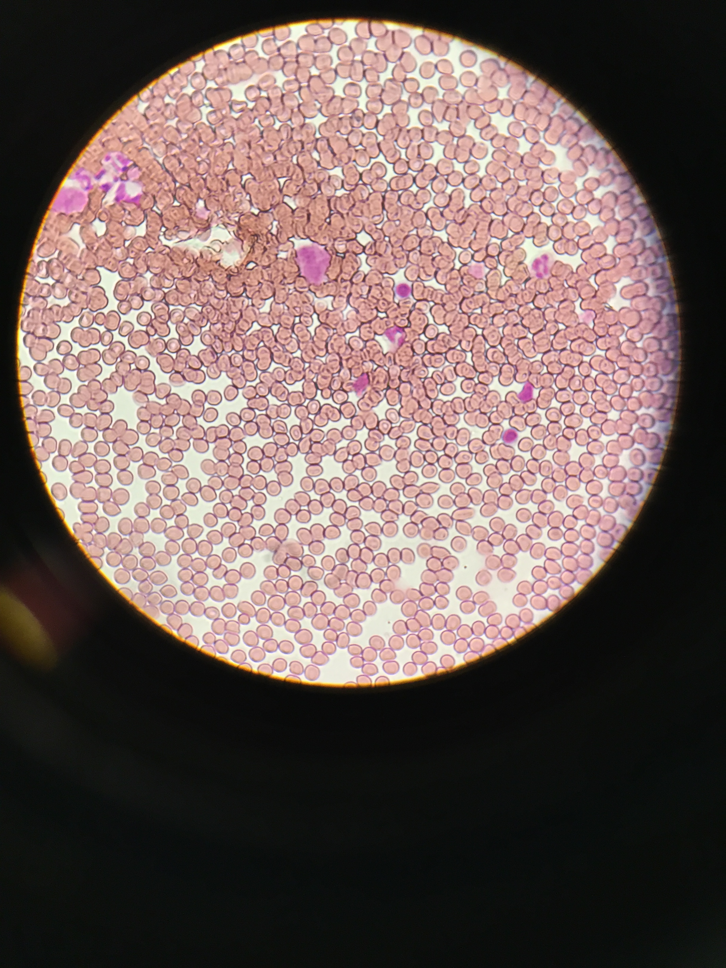 My red red blood cells, advanced nutrition lab