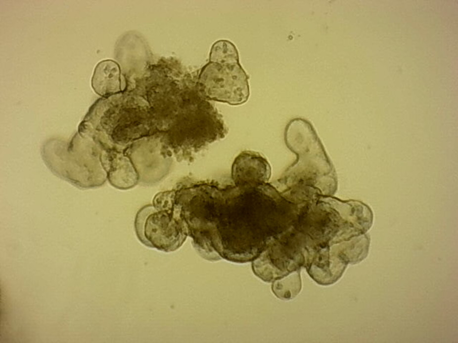 Small intestinal organoids growing in culture.Louise Thompson,Author provided