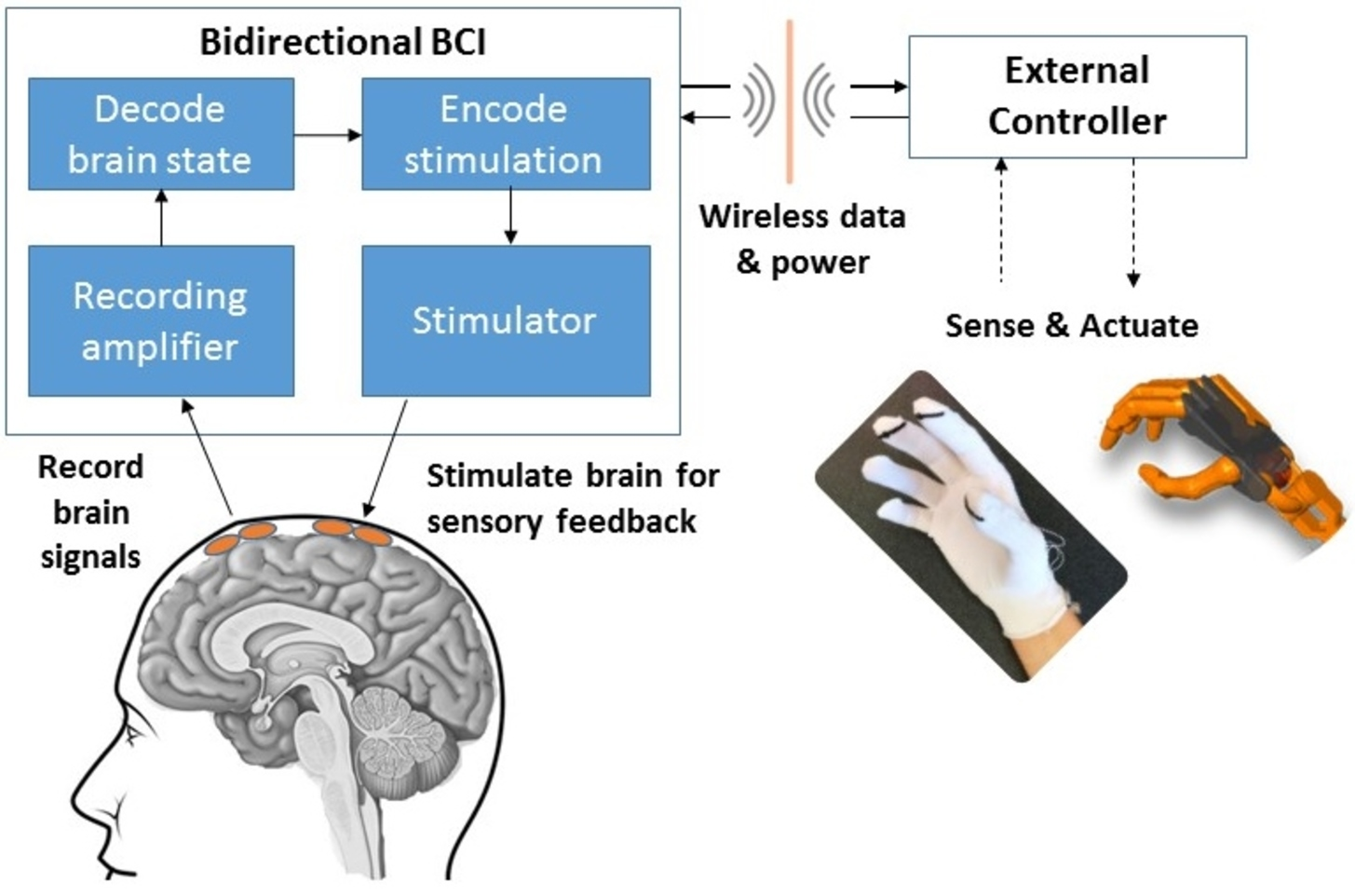 A bidirectional brain-computer interface (BBCI) can both record signals from the brain and send information back to the brain through stimulation. - Image Credit: Center for Sensorimotor Neural Engineering (CSNE),  CC BY-ND