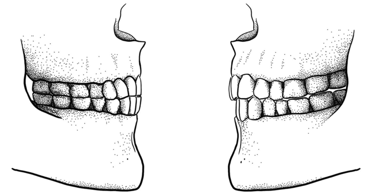 The difference between a Paleolithic edge-to-edge bite (left) and a modern overbite/overjet bite (right). - Image Credit: Tímea Bodogán,  CC BY-ND